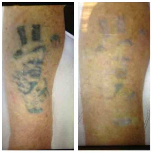 10 bristol tattoo removal clinic for Tattoo removal clinic